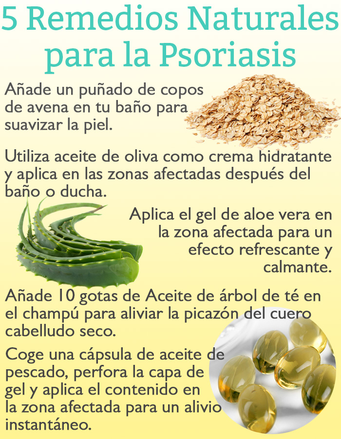 5-remedios-naturales-para-la-psoriasis
